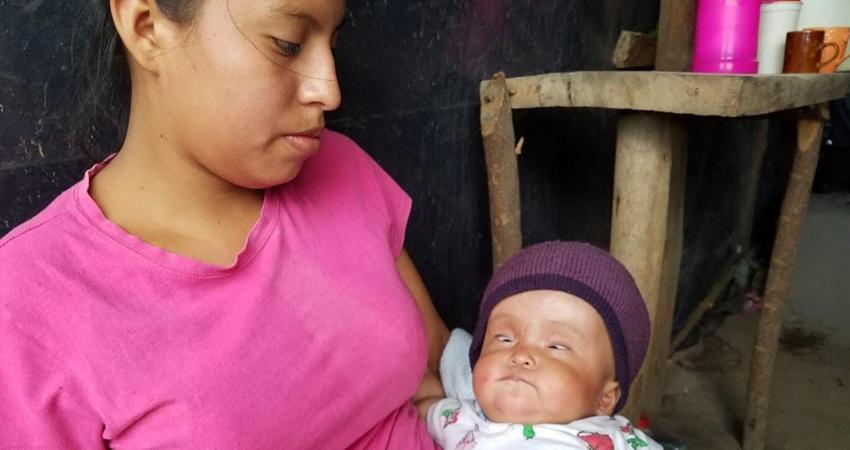 A pesar de que no le aseguraban la vida, esta pequeña de 5 meses sigue luchando tras superar dos operaciones por la hidrocefalia de la que padece.