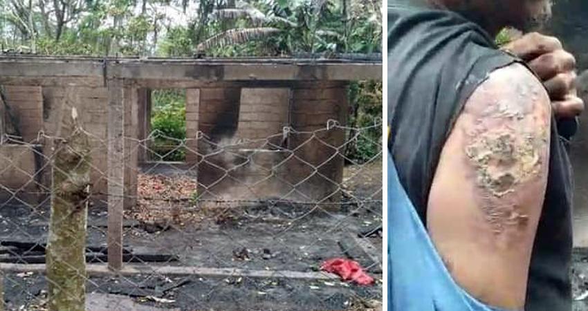 Supuestamente se molestaron porque no fueron invitados a la fiesta. Hay cinco detenidos por supuestamente provocar el incendio de una vivienda en una comunidad de Condega, Estelí. Una persona resultó con quemaduras.