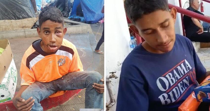 Las imágenes de Ramón Obed se hicieron virales en redes sociales, donde apareció gravemente golpeado y arrastrándose por el suelo. Afortunadamente buenas personas le han apoyado en su mejoría.